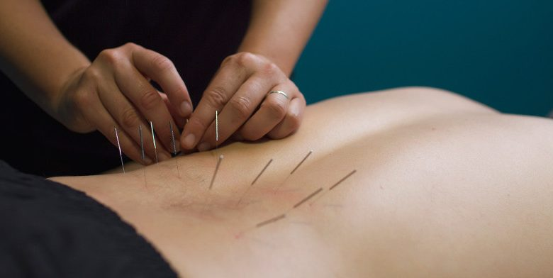 Best Outlet for Safe and Hygienic Acupuncture Needles