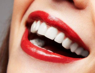 Dental Veneers Is Solution to a Perfect Smile.