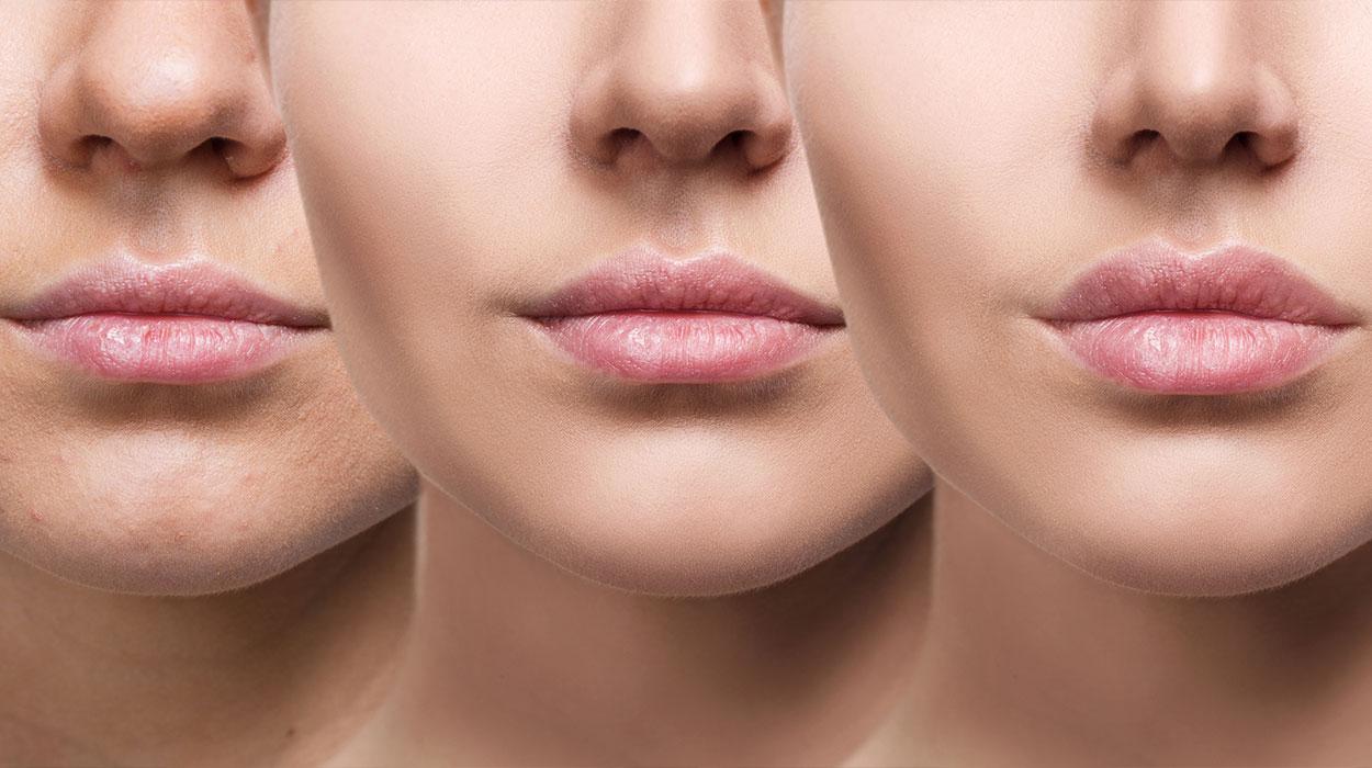 dermal and lip filler in Melbourne